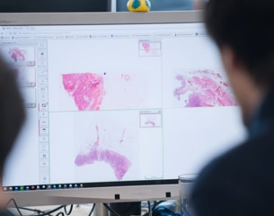 I-write-cancer-detection image at philips